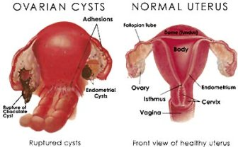 tumor ovarium